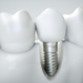 Seven Advantages of Dental Implant Surgery